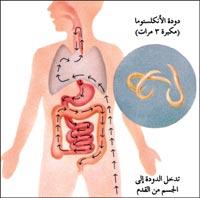 740 مليون شخص في العالم يعانون من التهابات دودة الأنكلستوما