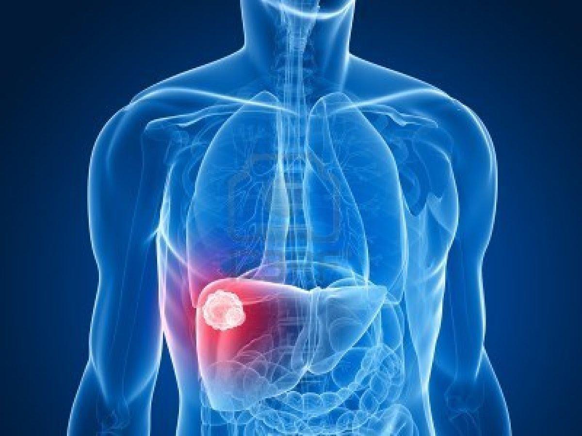 6 أشياء تسبب تليّف الكبد .. تعرف عليها
