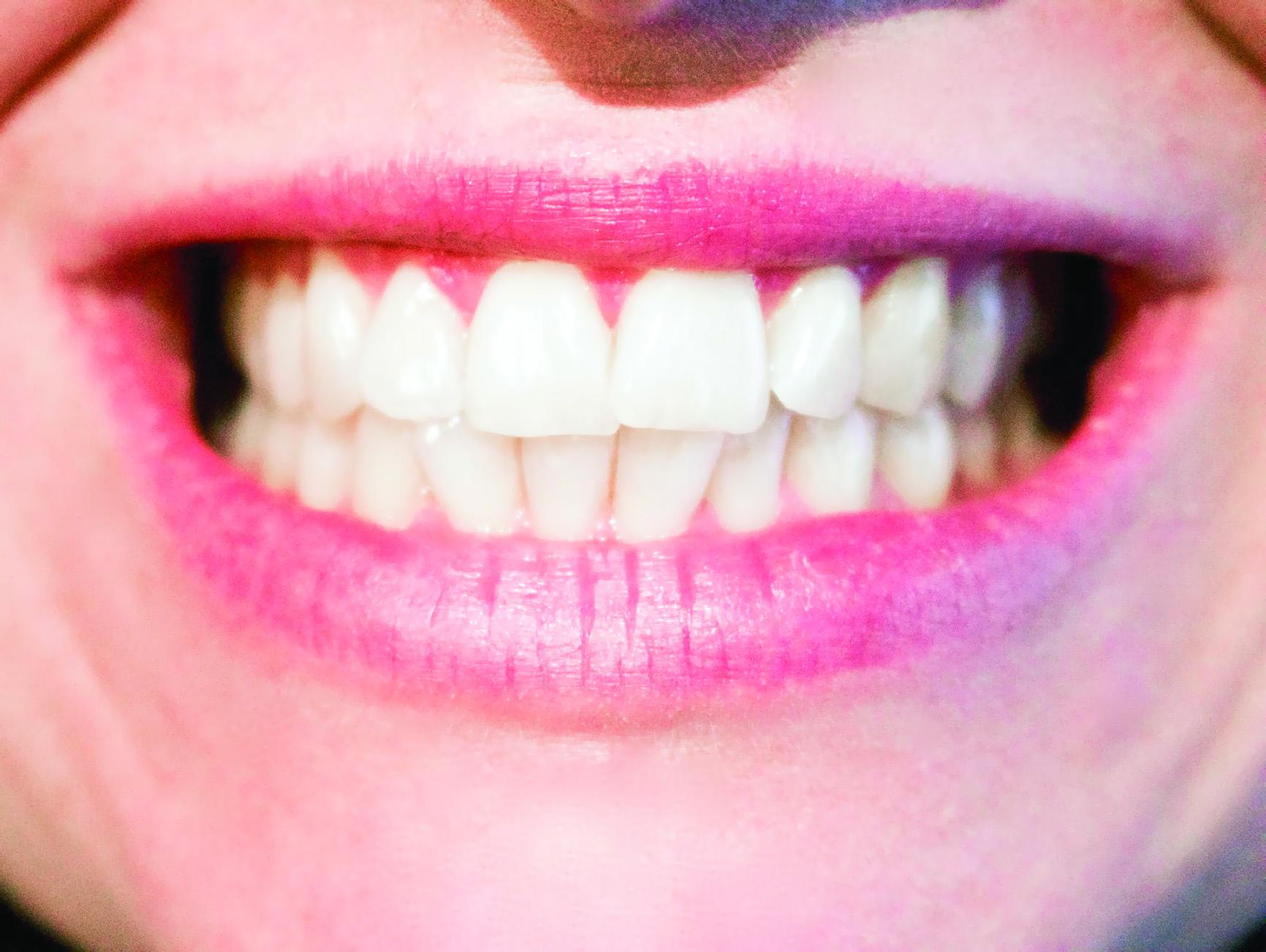 10 معلومات خاطئة نعتقد أنها جيّدة للأسنان!