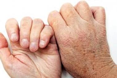 مضادات الاكسدة المشتركة يمكن ان تؤخر من شيخوخة الجلد