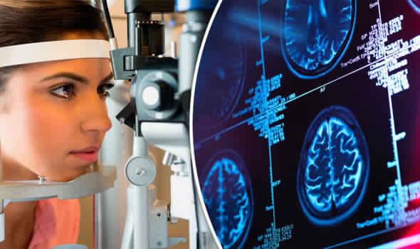 شبكية العين تكشف مقدمات الزهايمر قبل الإصابة به ب20 عاما
