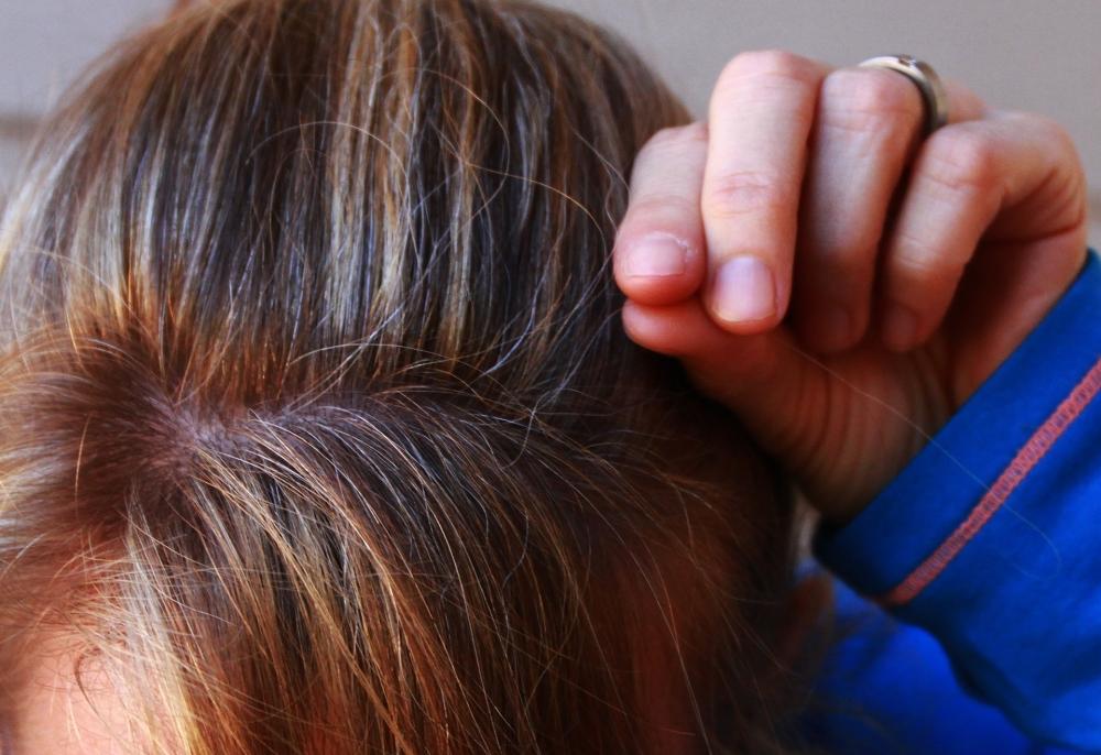 هل انتزاع الشعر الأبيض يؤدي إلى انتشاره؟