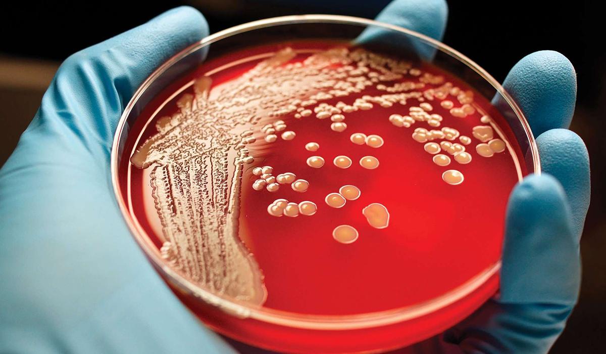 سرطان الدم.. أعراض شبيهة بالإنفلونزا وهكذا يُكتشف