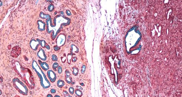 التوصل لجين يزيد من احتمالات الإصابة بسرطان الجلد