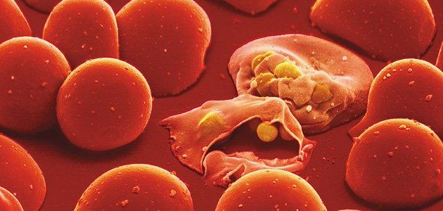 """علاج جديد وفعال لـ""""الملاريا"""""""