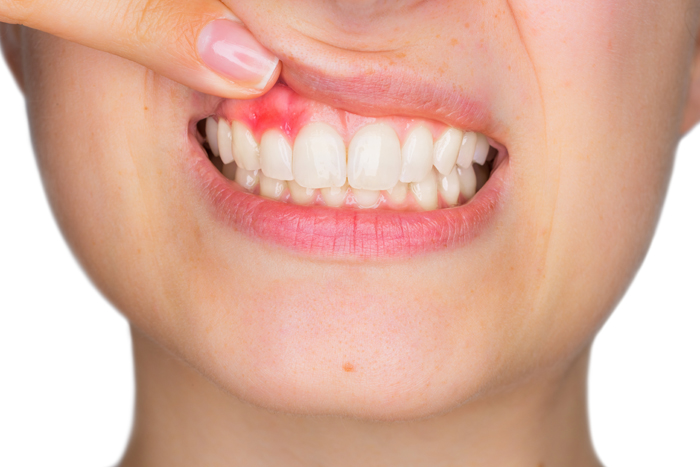 Debunking the myths about gum diseases
