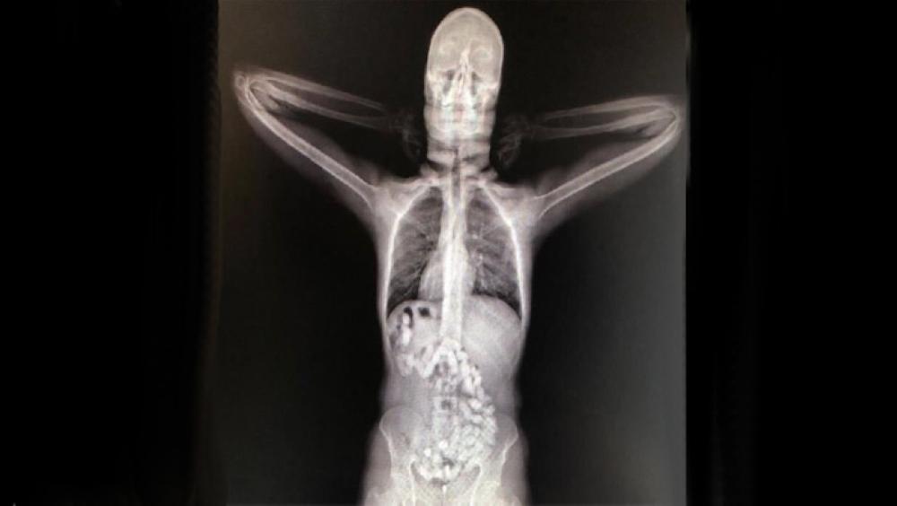 ضبط شخص حاول تهريب أكثر من 60 كبسولة مخدر هيروين