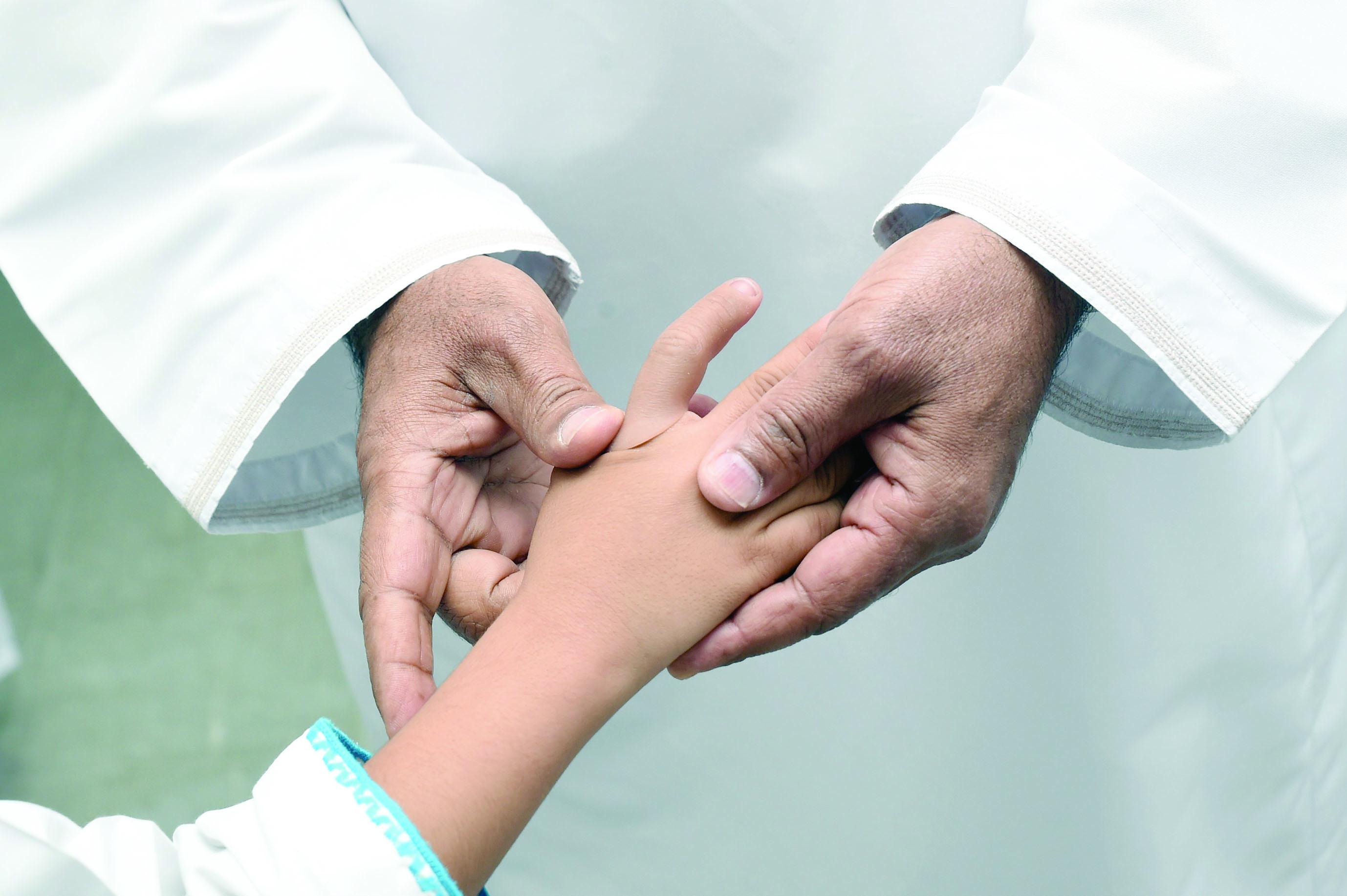 في مستشفى خولة لـ33 مريضاًتركيب عدد من الأصابع الصناعية المتطورة