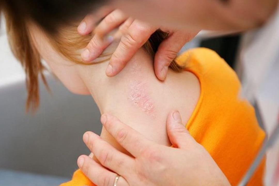 خلافا للاعتقاد السائد.. مرض الصدفية يهاجم الأطفال أيضا