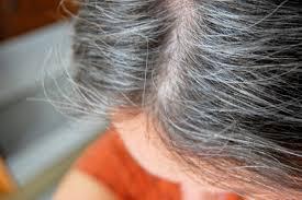 منها صبغ الشعر..أسباب ظهور الشعر الأبيض