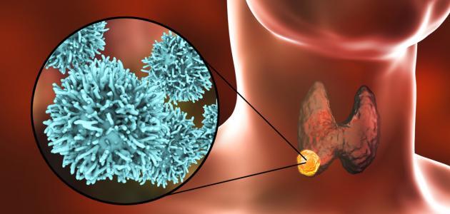 تقرير: أمراض الغدة الدرقية بما فيها السرطان تنتشر في السلطنة