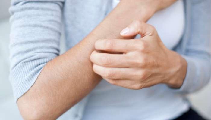 د.صالح الهنائي: 7 أسباب للحكة وهذه طرق علاجها