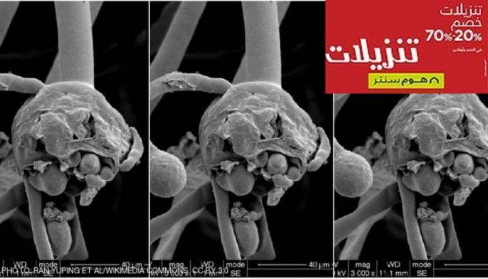 الصحة المصرية تكشف حقيقة الإصابات بالفطر الأسود