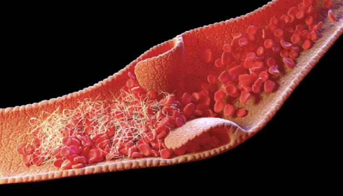 دراسة تحدد سبب تشكّل جلطات الدم لدى المصابين بكوفيد19 الشديد
