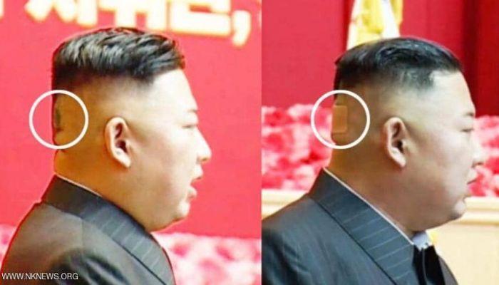 ضمادة وبقعة غريبة.. رأس زعيم كوريا الشمالية يثير التساؤلات