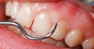 باحثون إيرانيون يطورون تقنية تعالج تسوس الأسنان دون قلعها