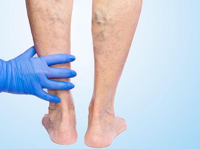Beyond varicose veins, 5 steps for good vascular health